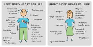 Left Vs Right Heart Failure Chart Overview Of Heart Failure Article Khan Academy