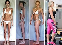 anorexics before and after. Linn Strmberg 23 Survived On Just 400 Calories Day And Was In Danger Of Suffering Heart Attack Before Taking Up Weightlifting To Anorexics After