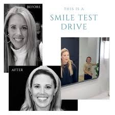 "WHAT IS A SMILE TEST DRIVE?"" The first... - Weston Spencer DDS"