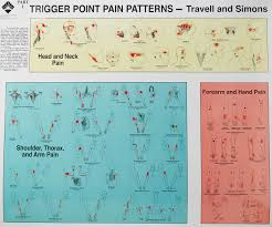 Muscle Pressure Points Chart Trigger Point Injections Trigger Point Injection Technique