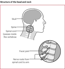 Arms or hands are made up of 30 bones each. Neck Pain Causes Exercises Treatments Versus Arthritis