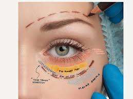 Eyelid Anatomy Custom Cosmetic Blepharoplasty Of The Lower Lids Joseph Walrath Md