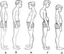 Реферат Сколиоз Лечебная физкультура при сколиозе ru В сагитальной плоскости чаще всего выделяют три типа нарушения осанки круглую спину плоскую спину сутулую спину однако часть авторов выделяют