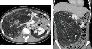 giant sporadic renal angiomyolipoma