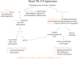 Pathophysiology Of Pyelonephritis In Flow Chart Multidetector Ct In Renal Tuberculosis Springerlink