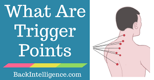 What Are Myofascial Trigger Points And 5 Ways To Release Them