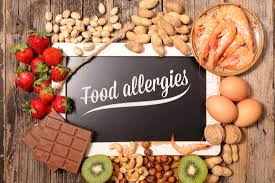 5 tips for dealing with food allergies