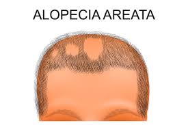 Scalp pain associated with hair loss. Hair Loss On One Side Of Head Causes Treatments Hairguard