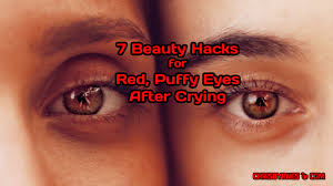 7 beauty hacks for red puffy eyes after crying