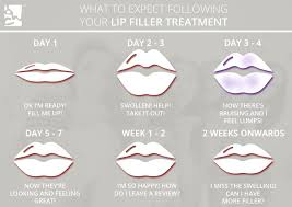 dermal fillers aftercare the skin and