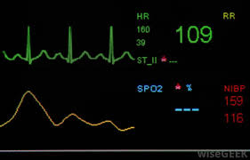 What Is A Resting Heart Rate Chart With Pictures