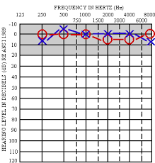 Normal Hearing Range Age Chart Audiometry
