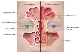 Sinus Chart Sinus Infection Sinusitis Community Antibiotic Use Cdc