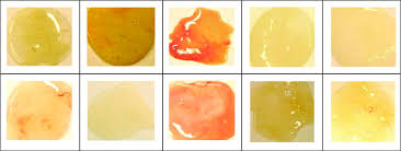 Reproducibility Of The Sputum Color Evaluation Depends On
