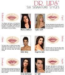 Lip Filler Chart Lip Shapes Lip Augmentation Botox Lips Dermal Fillers Lips