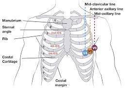 Ekg Lead Placement Chart Ecg Lead Positioning Litfl Medical Blog Ecg Library Basics