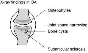 pain relief for osteoarthritis uk