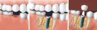 """Résultat de recherche d'images pour """"pose implants dentaires"""""""