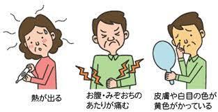 胆嚢 炎 症状