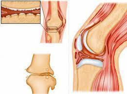 Костно суставный туберкулез частота поражения различных костей  Туберкулез костей