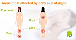4 Areas Most Affected by Itchy Skin at Night