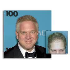 Hair Transplantation   Dr. Ivan Cohen