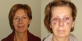 Zwelling verminderen na operatie