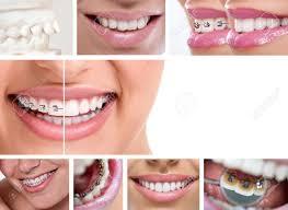 「lingual orthodontics win」の画像検索結果