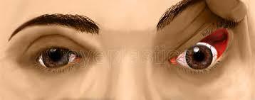 Oatmeal cookies for diabetics recipe : Floppy Eyelid Syndrome Eye Lid Laxity Ectropion Entropio Floppy Eyelid Laxity Trichiasis