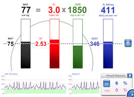 Chart Bars Screen Lidco Hemodynamic Monitoring For The