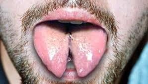 Tongue Splitting Medical Bag