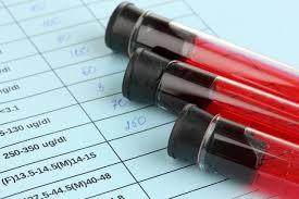 Resultado de imagem para ilustrativo pra droga ante hiv