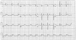 Diseases Free Full Text St Elevation Myocardial Infarction In