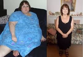 How to drop 230 pounds — without weight-loss surgery | Lifestyles ...