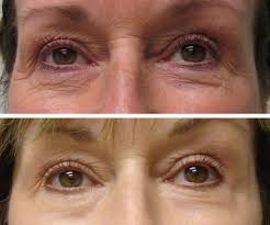co2 laser madonna eye lift skin tightening katy houston cypress