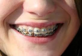Overbite Treatment Kingwood Tx Kimbrough Orthodontics
