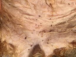 fleas lay eggs in human hair