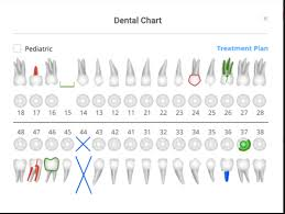 Manual Charting In Dentistry Detailed Dental Charting For Dentists Clinicia Mumbai