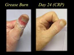 second degree burn pictures