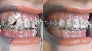how to fix a misaligned jaw zara dental
