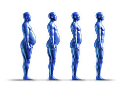 Bariatric Surgery - Types of Weight Loss Surgery