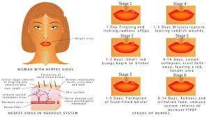 cold sore ses causes symptoms and