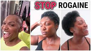 using rogaine natural hair update