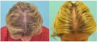 prp acell hair loss treatments 1