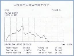 Uroflowmetry Used To Detect The Deficinecy In Urinary Tract By Non