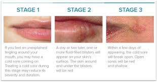 prevent recurring cold sores in 2020
