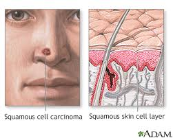 squamous cell skin cancer information