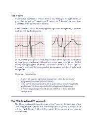 The P wave | Electrocardiography