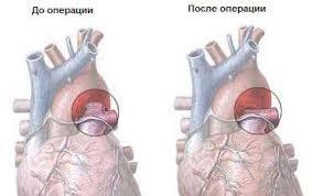 Врожденные пороки сердца Предрасполагающие факторы