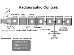X Ray Factors Chart X Ray Image Formation And Contrast